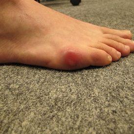 Bursite inflammatoire M5_Web