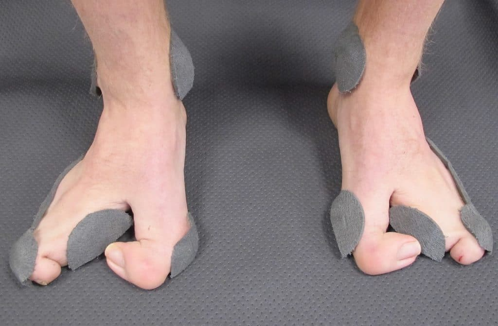 Total Feet cas special _ chaussure de ski sur mesure